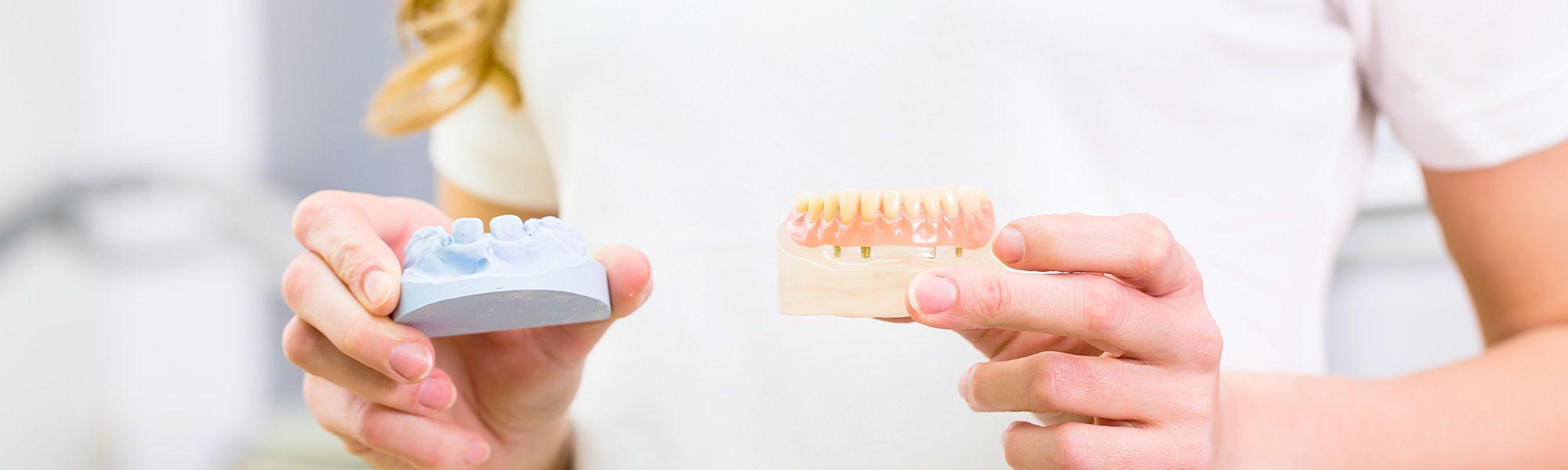 Schöner Zahnersatz aus Kleve: Krone, Brücke aus Keramik